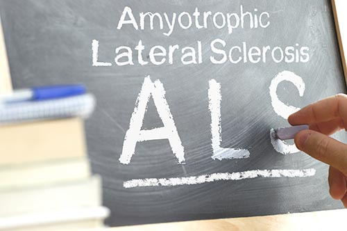 Blackboard Hand Writing The Als Acronym Next To Some Science Boo