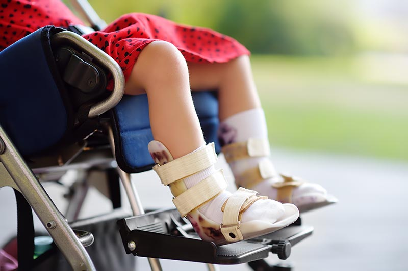 Disabled Girl Sitting In Wheelchair. On Her Legs Orthosis. Child Cerebral Palsy. Inclusion.